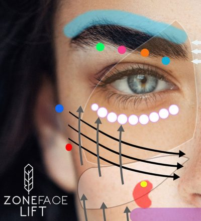 Zone Face Lift